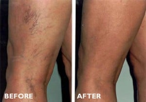 Sclerotherapy-Before_After-Treatment