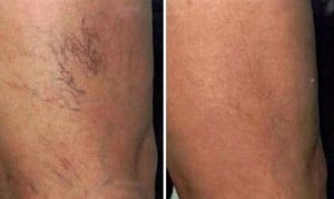 Laser Vein Treatment - Before & After